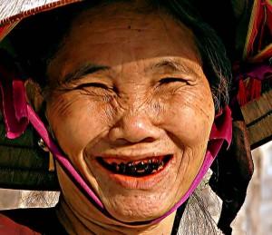 Răng đen